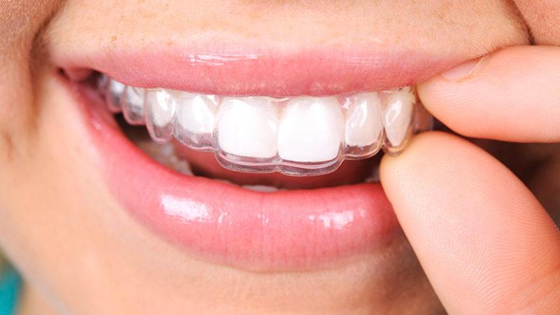 Cada vez más demandada la ortodoncia Invisalign en Argüelles