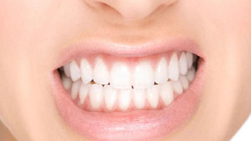 Acude a tu clínica dental Arguelles para combatir el bruxismo