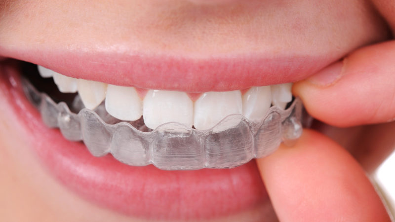 Ortodoncia Invisalign: consejos de higiene y limpieza